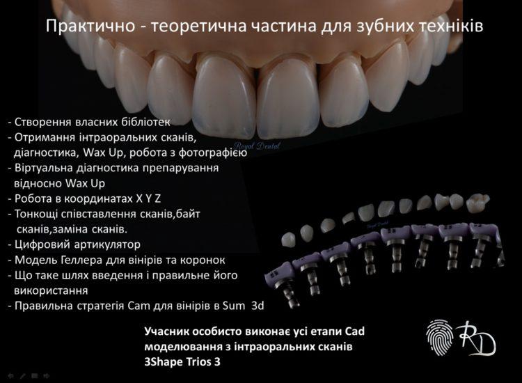 https://royaldental.com.ua/wp-content/uploads/2019/12/0-02-05-79b6a0220da235a9f61f3c9c7ff8ec140609ff7ac26de35039c96ef31d2eca46_c9d6b68f-750x550.jpg