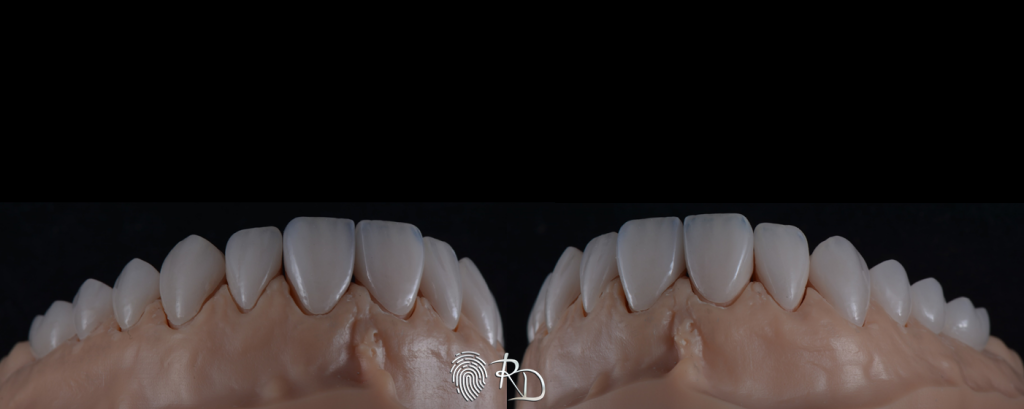 //royaldental.com.ua/wp-content/uploads/2020/01/0890890890.png